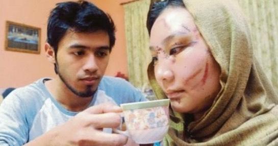 Masih Ingat Nur Shafiqa Mangsa Toreh Perompak 2 Tahun Lalu? Ini Gambar Keadaan Terkininya.