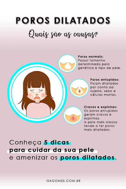 5 dicas para amenizar poros dilatados