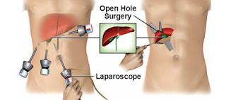 Laparoscopy (keyhole surgery)