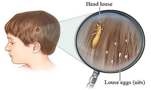 Ini dia Cara Praktis Mengatasi Masalah Kutu Rambut pada Anak anak! Setiap Orang tua harus tau nih!