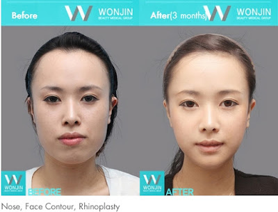 before and after korean celebrities face contouring-4