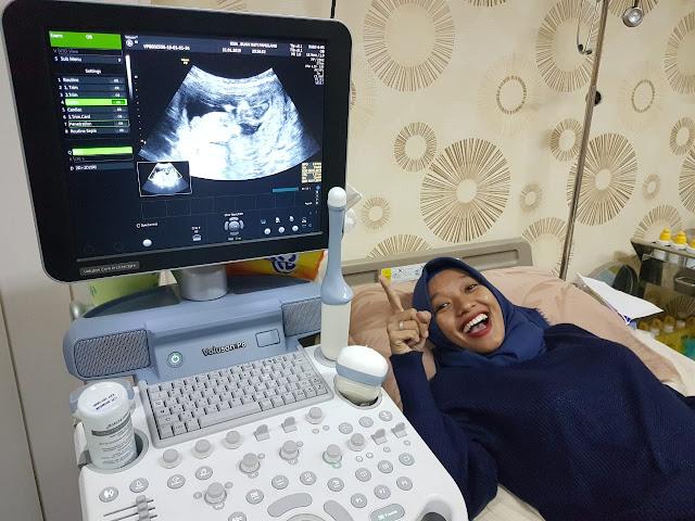 Biaya Cek Kehamilan di RSIA Buah Hati Pamulang - jet on vacation