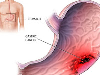 Diffuse gastric cancer  symptoms and causes