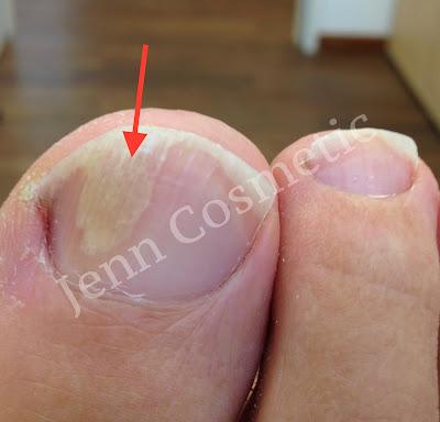 fußnagelpilz-schnelle-einfache-nagelpflege