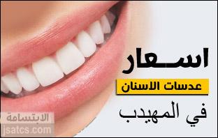 أسعار عدسات الأسنان في المهيدب