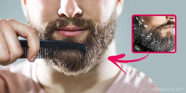 uzun sakalda kepeklenme, sakalda aşırı kepeklenme, saç ve sakalda kepeklenme, kaşta ve sakalda kepeklenme - www.kahvekafe.net