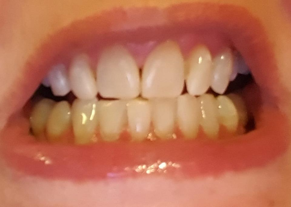 Teeth Whitening Strips Fairywill