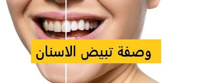 وصفات لتبيض الاسنان