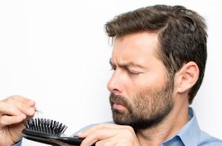Obat Rambut Rontok Untuk Pria