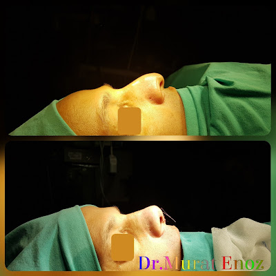 Nose Tip Lifting,Nose Tip Plasty in Istanbul,Droopy Nose Tip Aesthetic in Istanbul,Ptotic Nasal Tip, Sagging of Nose Tip,Nasal tip ptosis,Drooping Nose Tip,Long Nose,Droopy Tip,