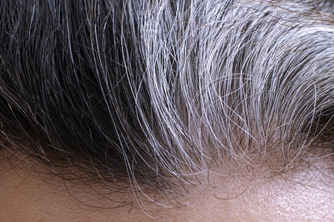 newgersy/Causes of baldness, gray hair identified