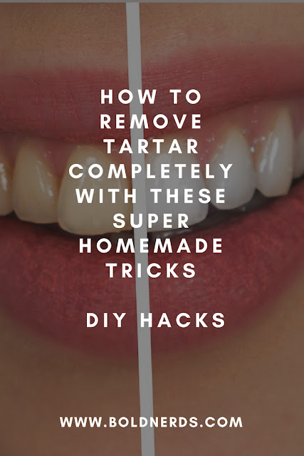 How to Remove Tartar Completely with These Super Homemade Tricks - DIY
