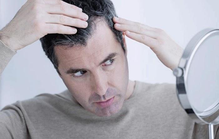 Saç Beyazlaması Nasıl Önlenir?