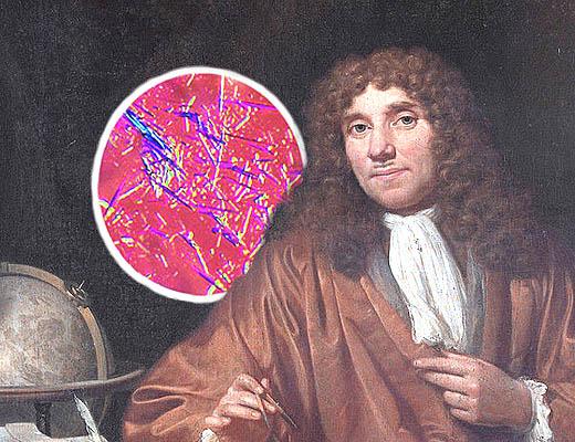 Kristal asam urat dan Antonie van Leeuwenhoek