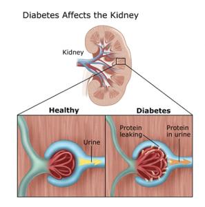 Diabetic Nephropathy (Kidney Disease)