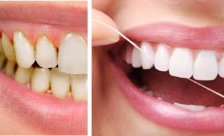 Menghilangkan Karang Gigi Sendiri