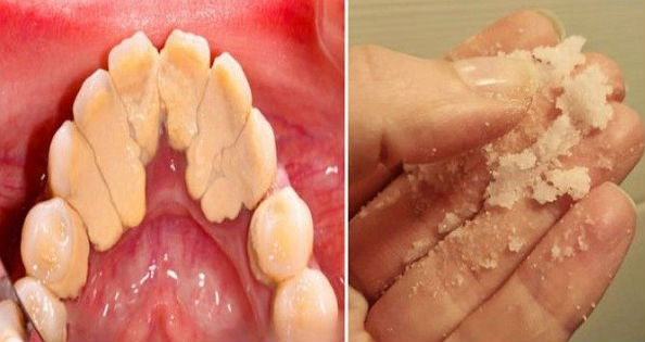 Dalam Hitungan Detik Karang Gigi Jadi Bersih Hanya Dengan Melakukan
