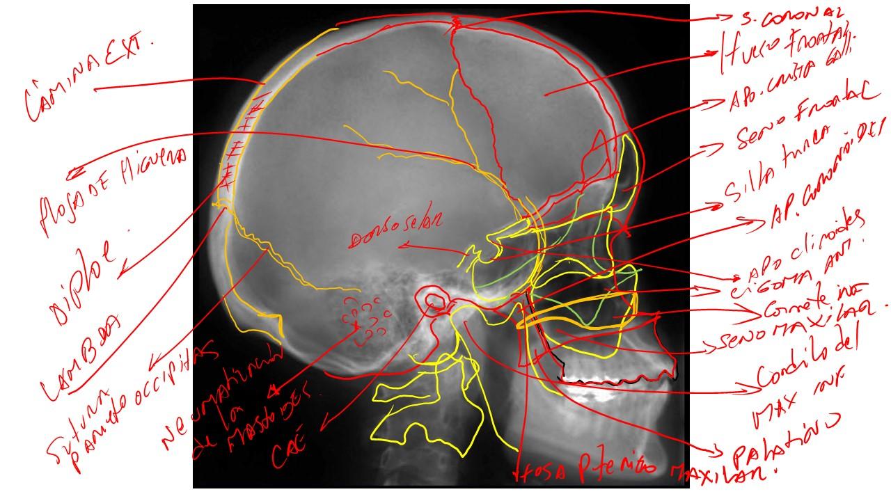 JUAN CARLOS GÓMEZ ESPINOLA: TECNICAS RADIOLOGICAS cabeza osea