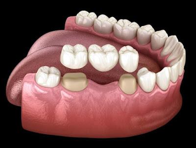 dental bridge advantage