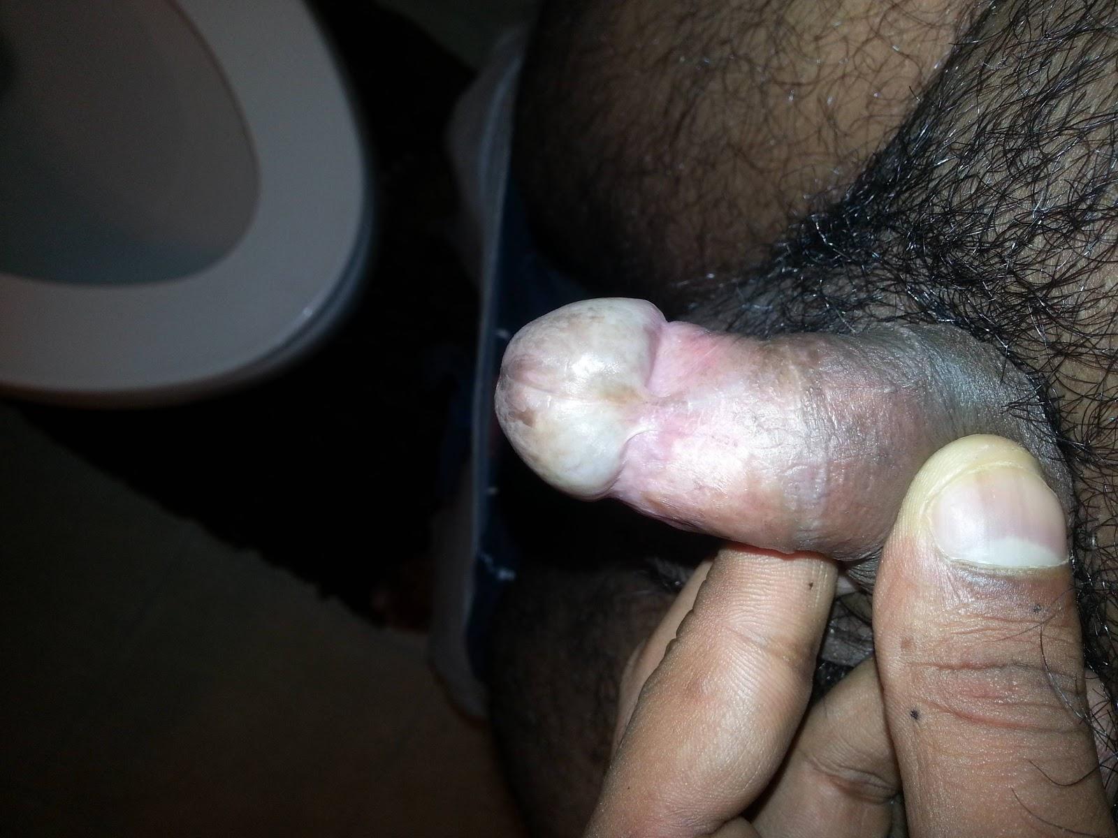 black foreskin pics