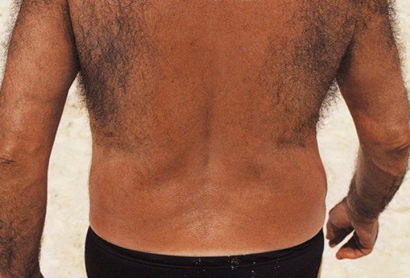 Awkward or Embarrassing Male Body Problems - Back Hair