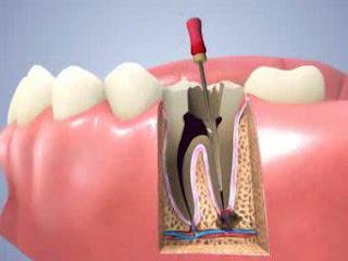 Trám răng lấy tuỷ