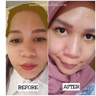 Testimoni acne peeling