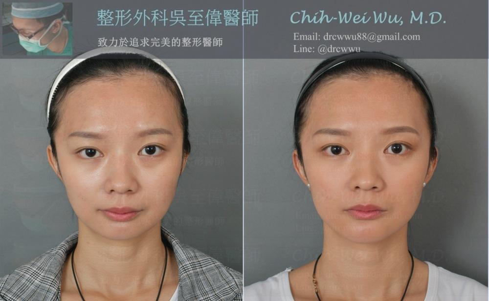 大分子玻尿酸調整臉型與下巴