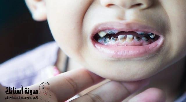 تسوس الأسنان عند الأطفال سنتين .