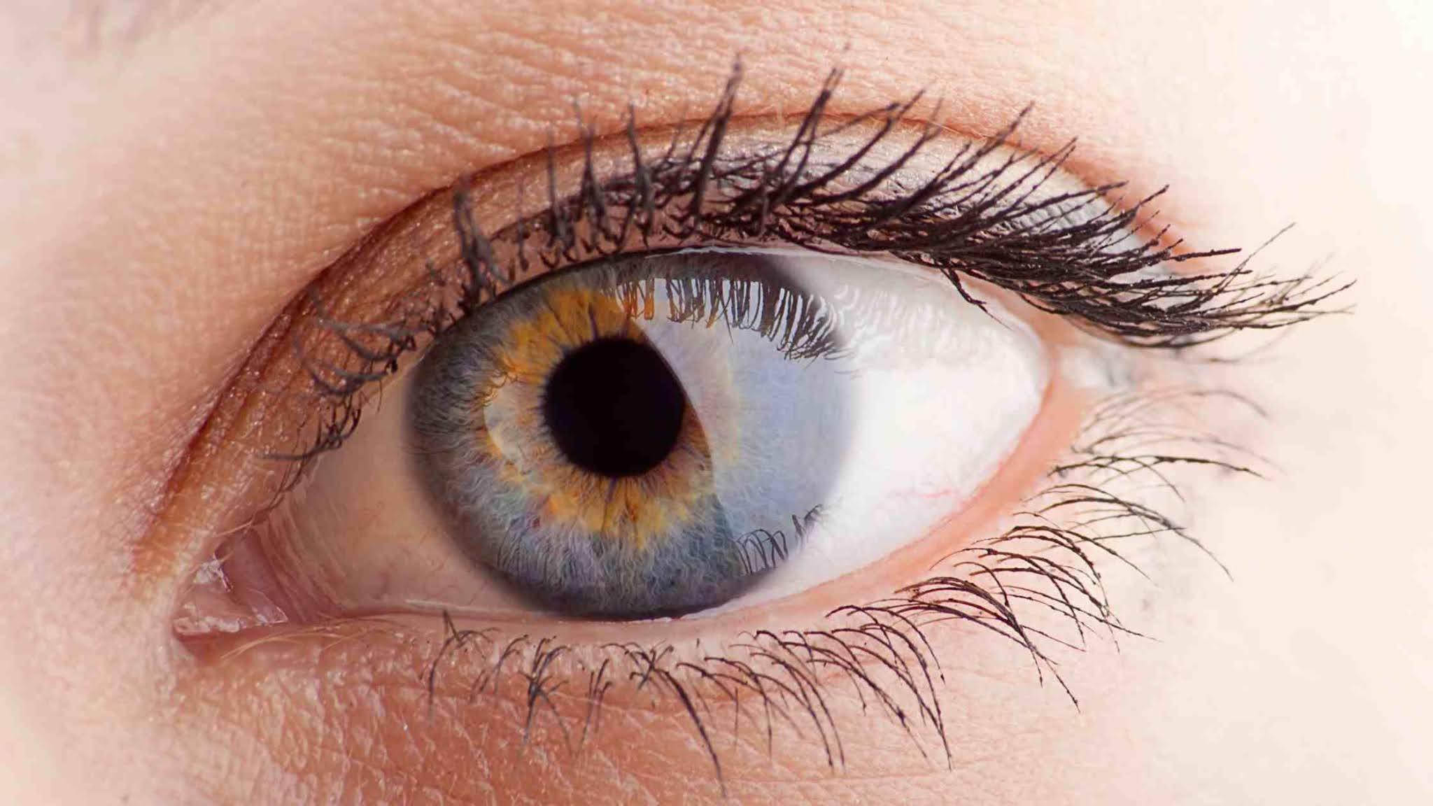 Eye Exercises For Vision Improvement
