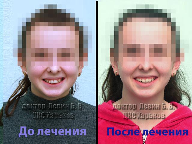 Два фото пациента с прогнатическим прикусом до лечения и ортогнатическим после лечения