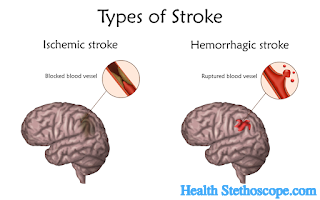 Stroke: Symptoms, Causes, Risk Factors, Types and Prevention
