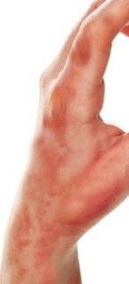 त्वचा जलने पर घरेलू सफल ईलाज Fire Burn Skin Treatment in Hindi