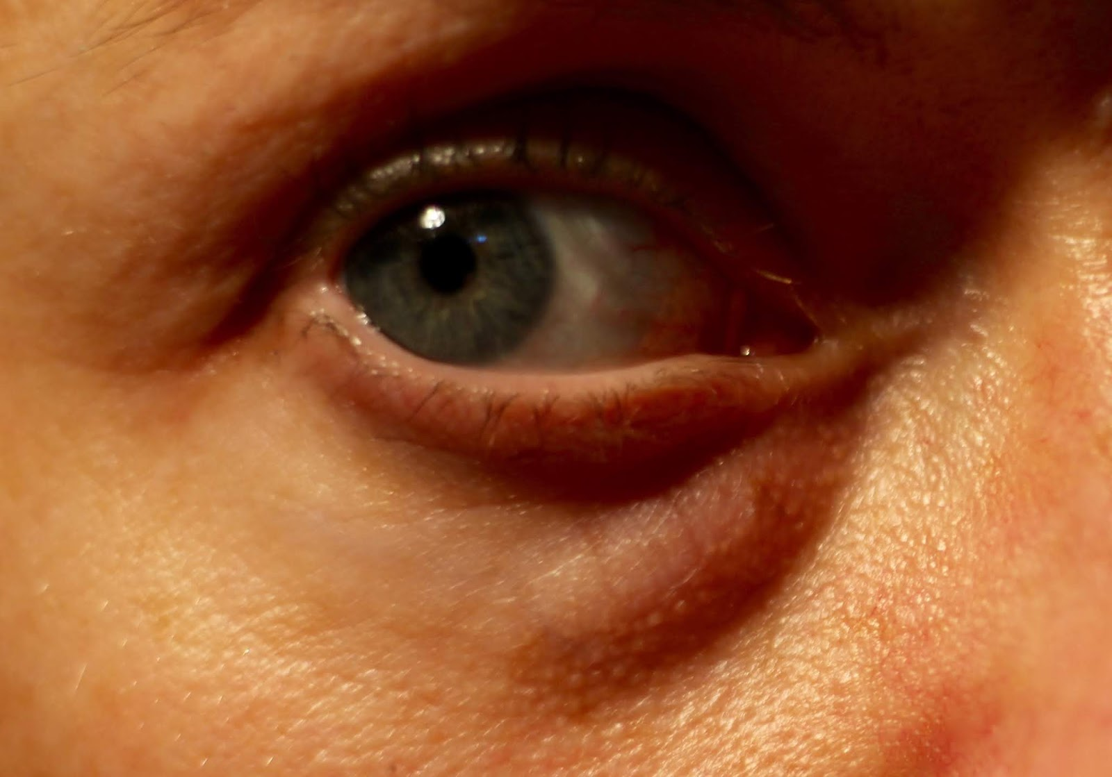 How to deal with Dark Circles... the truth! Fake Fabulous
