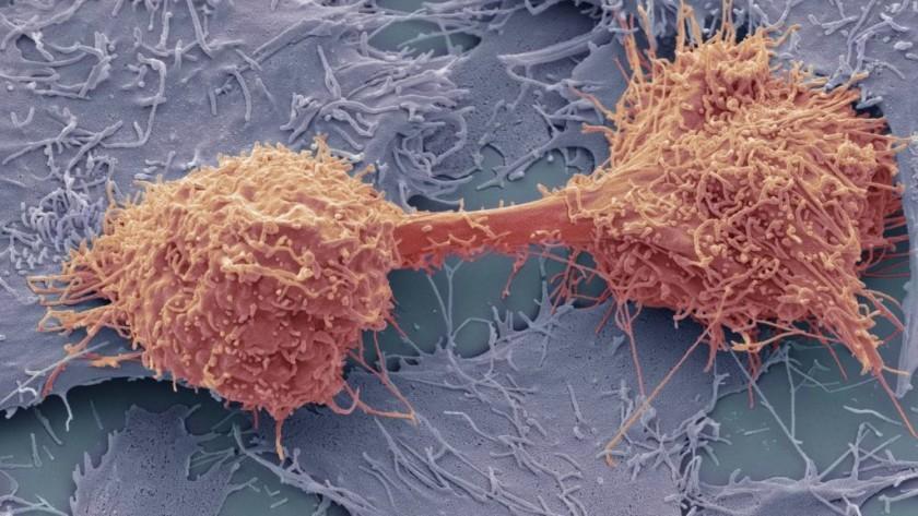 CancerSEEK - Detección Precoz De 8 Tipos De Cáncer Mediante Un Simple Análisis De Sangre