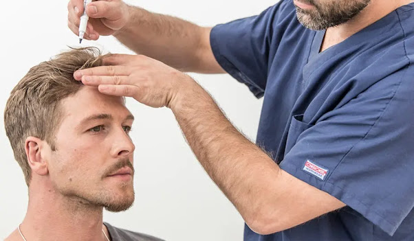 How To Prepare For A Hair Restoration Procedure