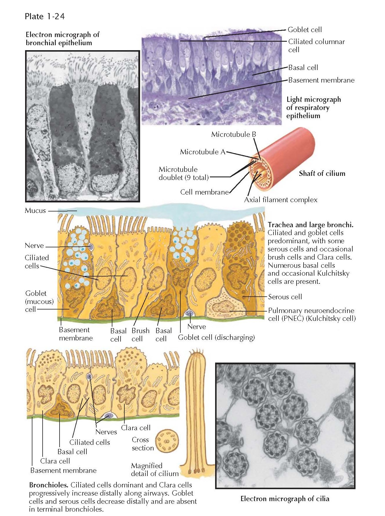 The Clara cell, The mucous (goblet) cell, The brush cell,  The ciliated cell, The basal cell