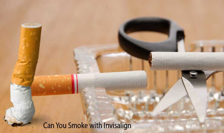 Can You Smoke with Invisalign?