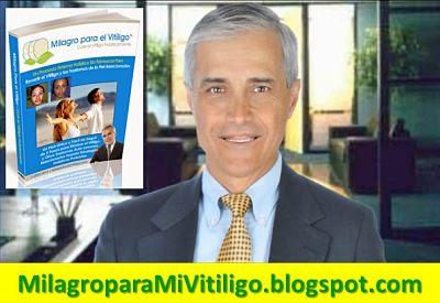 milagro-para-el-vitiligo-libro-opiniones-funciona-david-paltrow