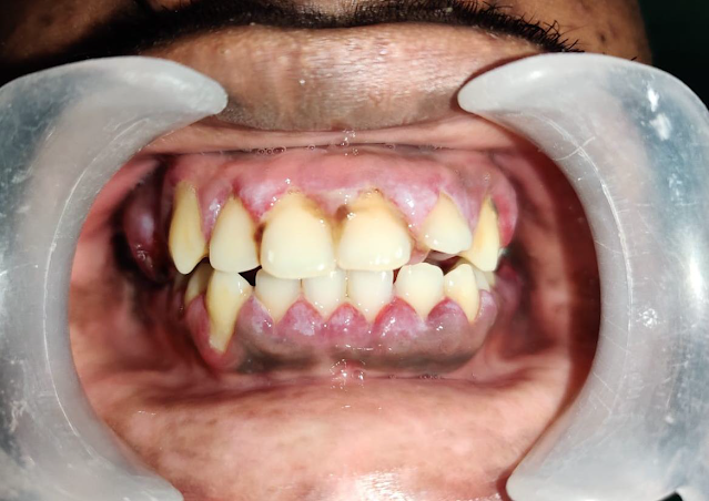mucormycosis Infected Teeth and jaw
