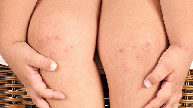 tanggap alergi dengan 3k kenali konsultasikan dan kendalikan