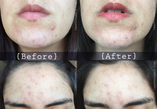 Caru Witch Hazel + Bee Balm Hydrosol Before & After :: The Acne Experiment
