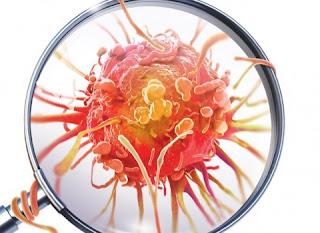 Exame de sangue detecta até 8 tipos de câncer