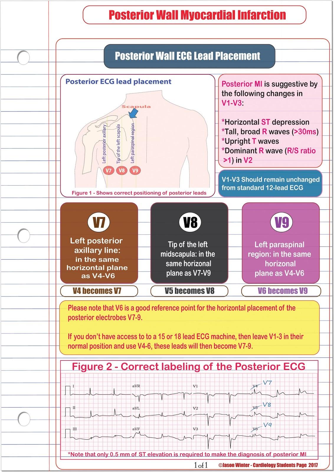Ecg Educator Blog Posterior Ecg Lead Placement