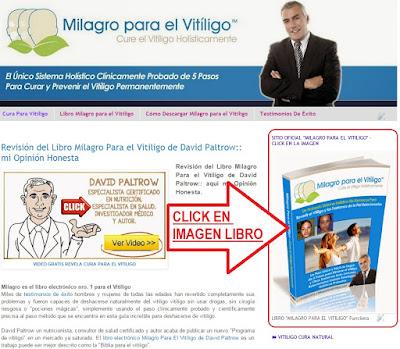 libro-milagro-para-el-vitiligo-david-paltrow-pdf-descargar