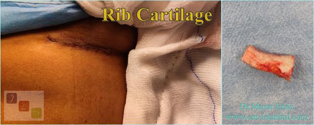 Rib Cartilage