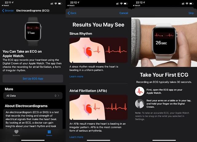 WatchOS 6 update brings ECG support for Apple Watch