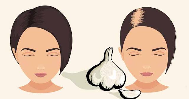 الثوم لتساقط الشعر كيفية استخدام