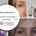 Личный опыт: инъекции диспорта + биоревитализация в клинике FIDES