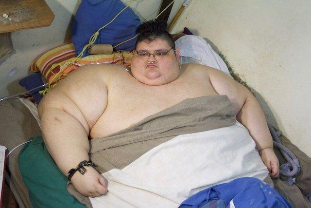 Latest Updates World S Fattest Man Juan Franco Prepares For Surgery